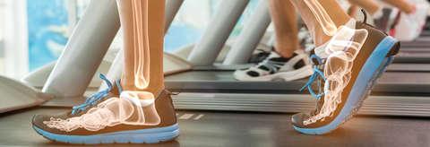 Grafische Darstellung der Fußknochen auf einem Laufband.